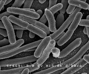 Bladder Infection Home Remedies