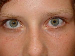 home remedies for red eyes
