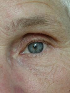 home remedy for wrinkles under eyes