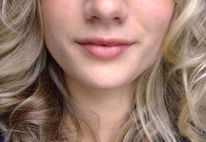 neosporin lip treatments