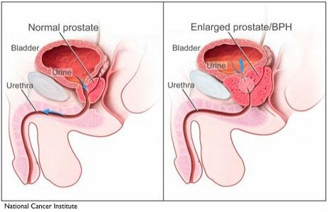 Prostate Enlargement Signs