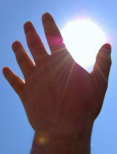 sunburn remedy