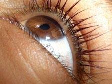 Vitreolent Eye Drop For Eye Floaters